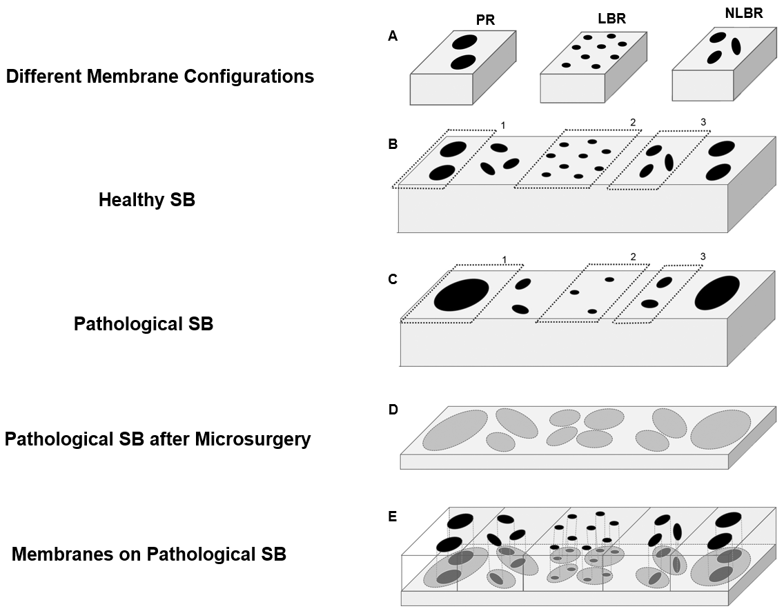 Figure 2 shows a scheme for implantation of preferred embodiments of membranes in different areas (peripheral rim (PR, 1), load bearing region (LBR, 2), non-load bearing region (NLBR, 3)) of a knee joint. A) Membranes with different channel structures corresponding to the respective SB areas are available. B) In healthy subchondral bone, channel configuration differs in the different areas of the joint (see also Fig. 1). C) Pathological channel configurations differ from that present in healthy bone (as shown B). D) shows a layer of pathological SB. Removal of pathological SB reveals underlying SB structures with increased number and cross-sectional area of microchannels. E) Corresponding membranes are fixed on the microsurgically pretreated SB to reinstate a physiologic size/number of channels (reflecting healthy SB microarchitecture). Source: US16/282,444.